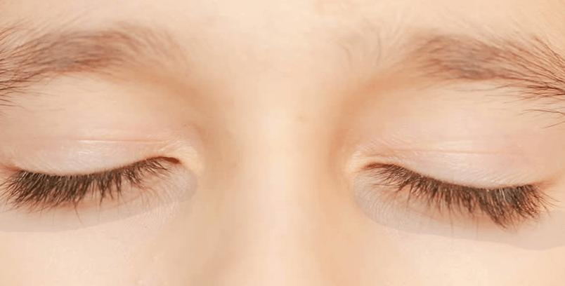 Cara 100% Menghilangkan Mata Panda & Kantung Mata Hitam  Dengan 2 Tumbuhan Ini
